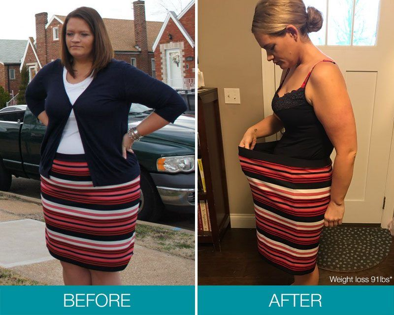 Obalon Patient weight loss before and After